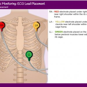 3 lead ECG placement